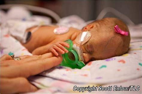 what health issues does josie duggar have duggar family blog duggar updates duggar pictures jim