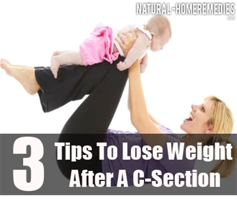 reduce weight after c section home remedies to loss weight after delivery