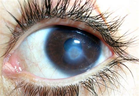ojo de nube el noticia leucoma corneal