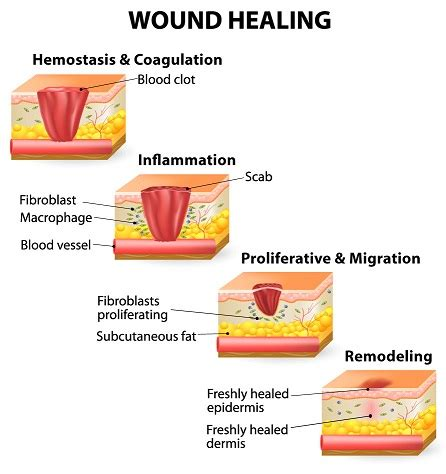 healing your attachment wounds how to create and lasting intimate relationships books the 4 stages of wound healing process new health