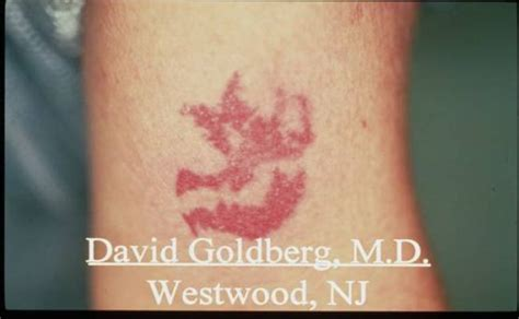 tattoo removal valdosta ga 100 atlanta removal by dr removal