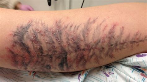 infected tattoo on leg tattoo ink linked to serious skin infections wbur news