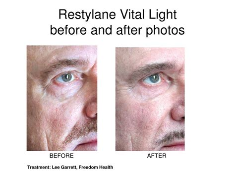 light rx before and after ppt restylane vital light boosting skin elasticity and