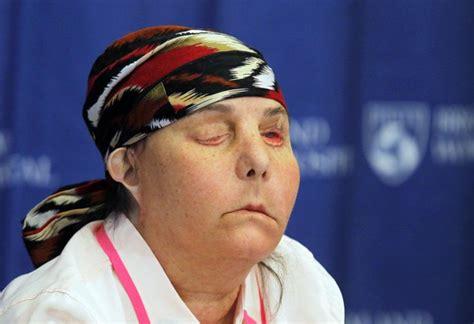 carmen tarleton acid attack victim gets new face carmen blandin tarleton