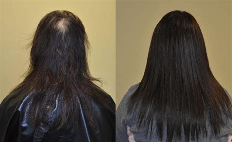 hair weaves for thin front hair hair extensions for thinning scalp om hair