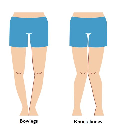 bow legged the gallery for gt knock knees correction