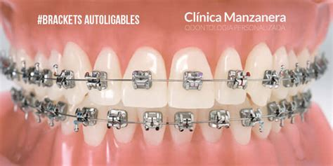 Bracket Behel Bracet Ortho Metal Bracket Metal Roth brackets autoligables ventajas vs inconvenientes