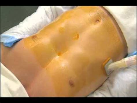 c section catheter duraprep stomach application with time lapse dry youtube