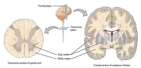 grey matter sclerosis research education whats an mri