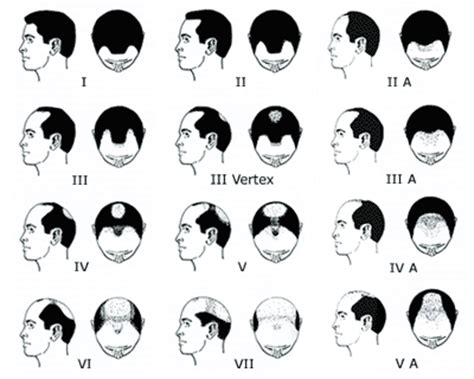 male pattern hair loss solutions male pattern baldness hair loss solutions and tips