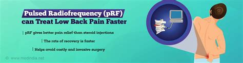 Pulsed Radiofrequency Safe And Effective For Pain Relief