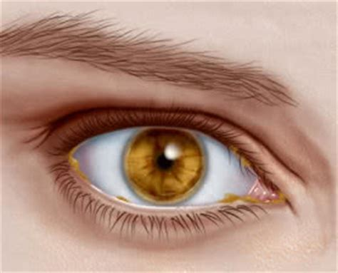 eye goop eye discharge causes symptoms and relief