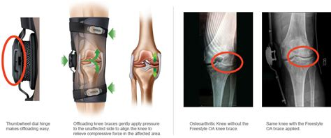 how to make a knee brace what is an oa knee brace csa supply