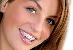 apparecchio mobile trasparente centro dentistico poliedro ortodonzia per adulti e