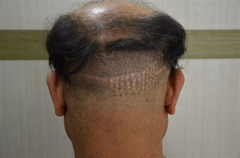 cover scars from hair transplant hair transplant scar bald gossip
