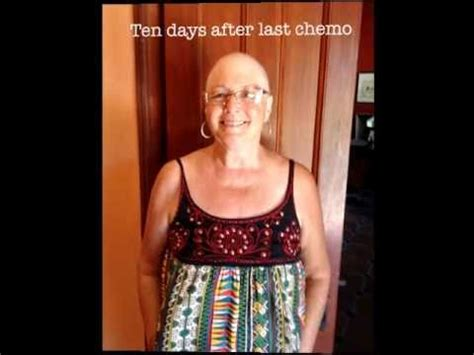 chemo hair regrowth timeline pictures of hair regrowth 4 months after chemotherapy