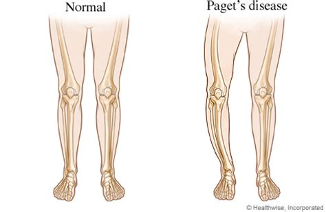 bowed legs from paget's disease