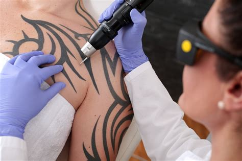 tattoo removal advice laser removal tips