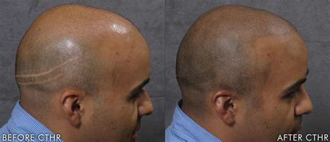 how to conceal hair transplant scar scalpmicropigmentation for scars micropigmentation stylist