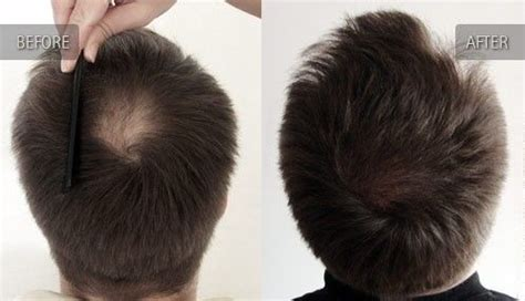 pattern hair loss cure using generic propecia finasteride to treat male pattern