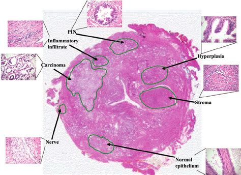 why are histological sections stained representative hematoxylin and eosin stained whole mount