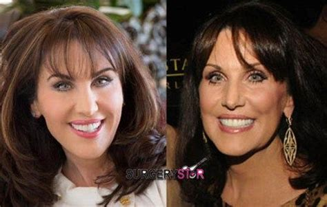 has anyone seen robin mcgraw dr phils wife recently marcia clark s plastic surgery rumors before and after