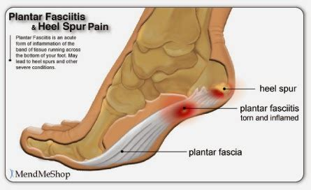 Can Foot Detox Help With Plantar Fasciitis by Purify Your Detox Foot Pads Relief From Heel Spurs