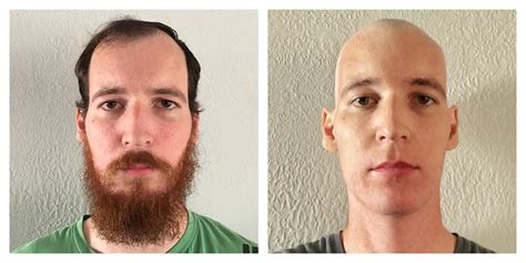 hair growth for men after chemo contemplating chemotherapy day 15 28 bald and