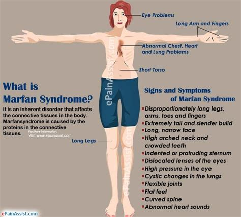 sindrome di best 17 best ideas about marfan on ehlers