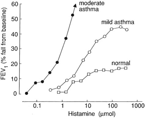 histamine challenge test standardized challenge testing with pharmacological