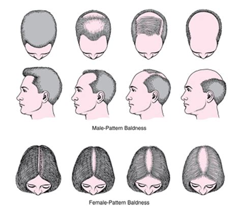 male pattern hair loss emedicine alopecia dermatologic disorders merck manuals