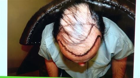 dr diep reviews dr diep reviews fue balding male hair transplant