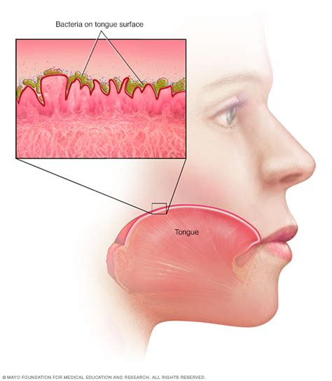 overview bad breath mayo clinic