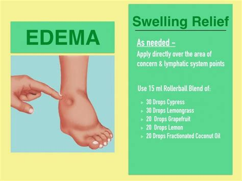 How To Detox For Swelling Ankles by 222 Best Edema Swollen Ankles Inflammation Remedies
