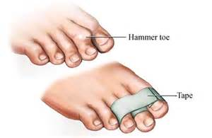 hammer toe causes symptoms and treatment the toe doctor