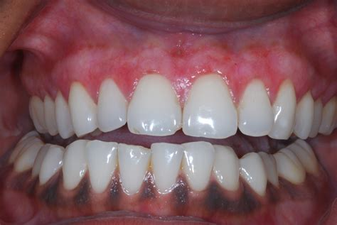 color of s gums gum bleaching is it for you dental implants