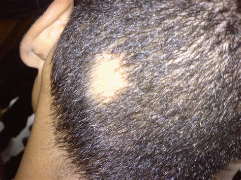 Types Of Hair Loss Diseases by Alopecia Areata