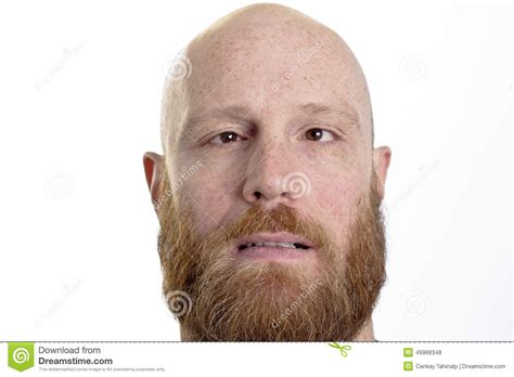 bald actor with white beard silly bald man with red beard and crossed eyes stock photo