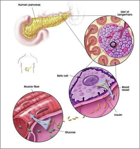 Lada Diabetes Definition Latent Auto Immune Diabetes In Adults Lada Typefree