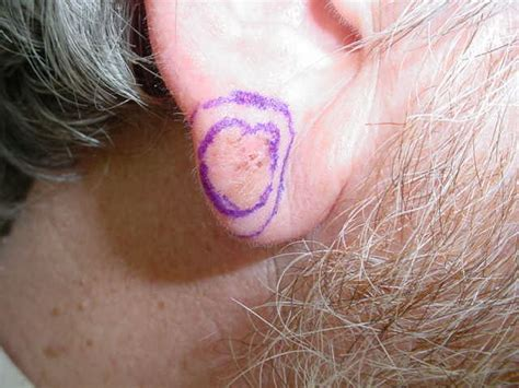 melanoma on earlobe part 1
