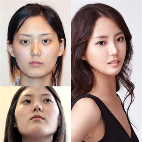 tutorial make up korea before after before and after photos of korean plastic surgery part 2