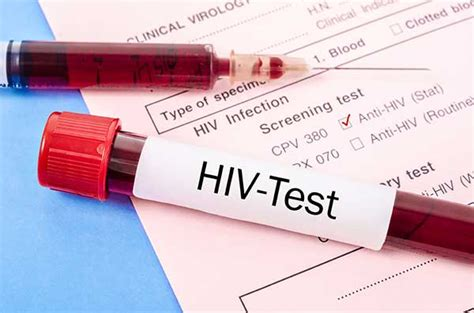 emergency room std testing hiv symptoms testing and treatment signaturecare emergency center