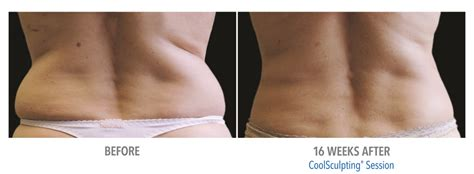 coolsculpting vs liposuction laser aesthetic center