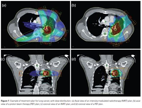 proton therapy lung cancer basic gt research gt development and current status of