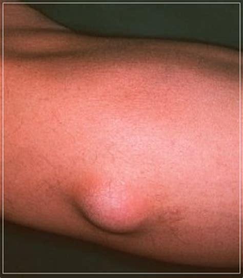 Obat Lipoma Benjolan Obat Oles Alami cara menghilangkan benjolan lipoma secara alami obat