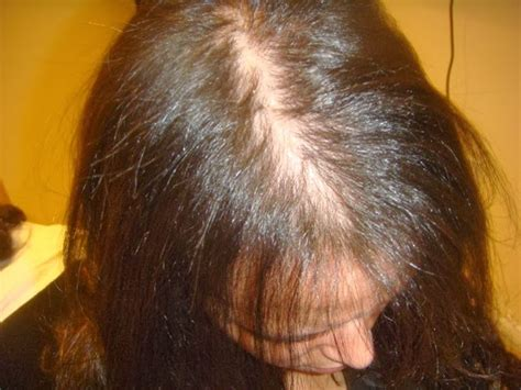 female pattern baldness image treatment for female pattern baldness options that work