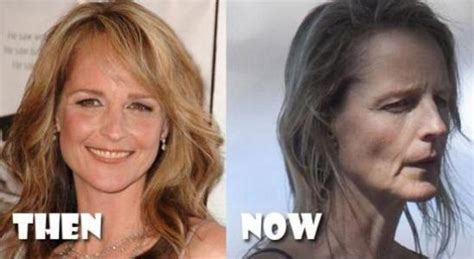 helen hunt jackson significance bad plastic surgery archives celeb surgery