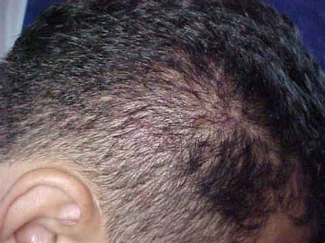 herpes zoster cuero cabelludo assunto caso clinico de lesoes no couro cabeludo piel l