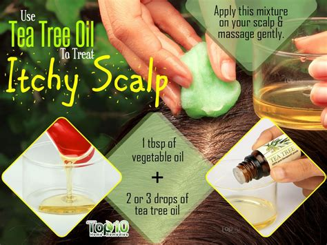 itchy remedies home remedies for itchy scalp top 10 home remedies