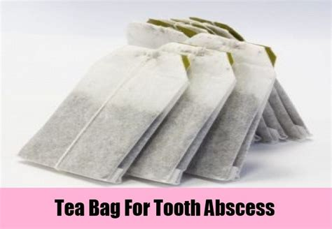7 home remedies for tooth abscess treatments